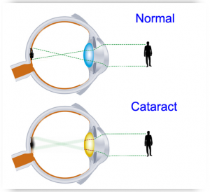 cataract 1 1