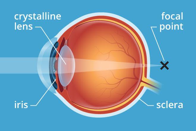presbyopia 330x220 1.25x 1
