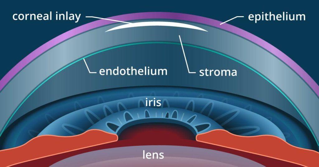 presbyopia surgery 1200x630 1