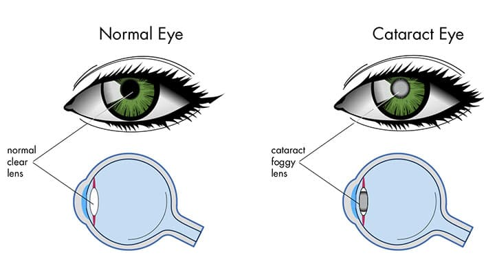 cataract meaning