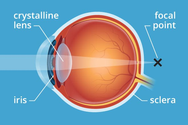 presbyopia meaning